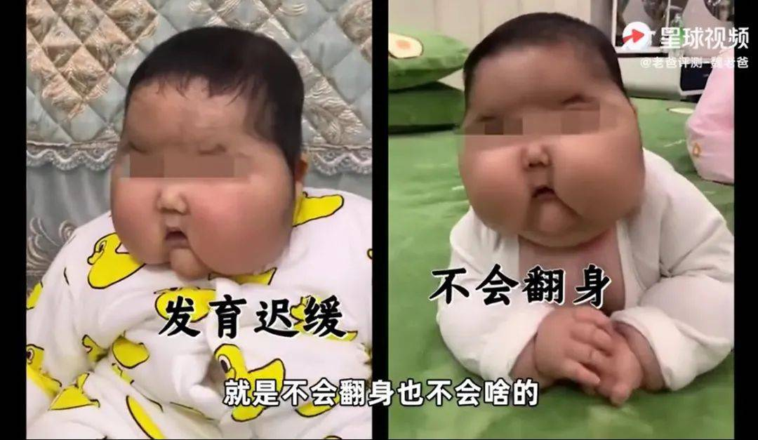 """""""大头娃娃""""敲响警钟:新加坡宝妈们,快检查一下""""宝宝霜"""""""